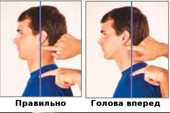 голова вперед