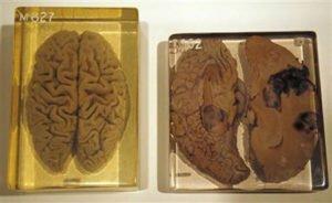 Мозг Эйнштейна